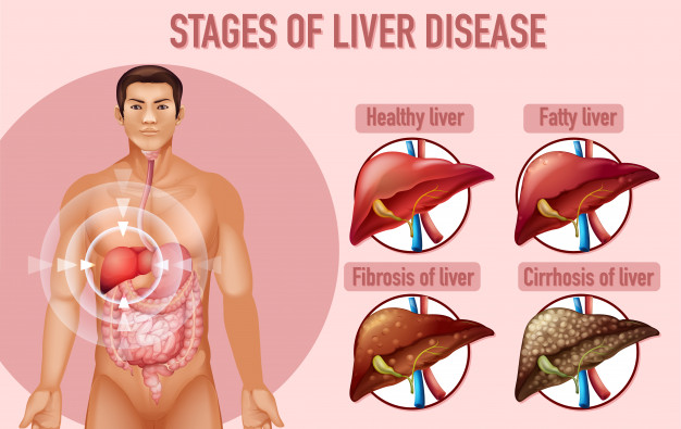 The role of diet in non-alcoholic fatty liver treatment